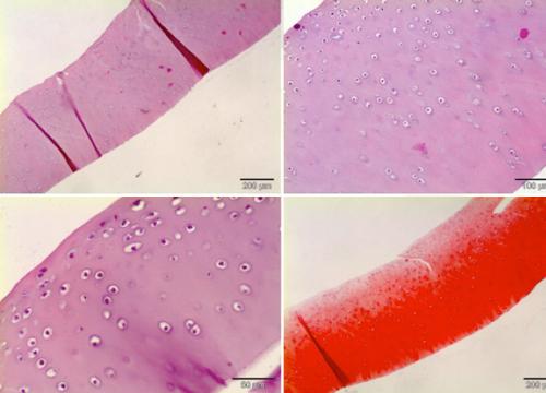 Cartílago articular normal teñido con hematoxilina-eonina y safranina