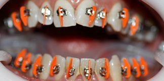 dientes_620.jpg