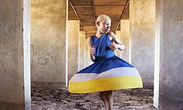 albinos-tanzania-ana-palacios.jpg