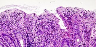 Ulcerative_colitis_(2)_endoscopic_biopsy_540.jpg